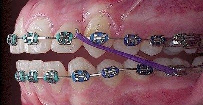 braces_diagram1.jpg